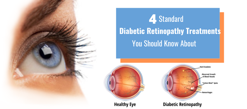 4 Standard Diabetic Retinopathy Treatments You Should Know About