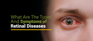 What Are The Types And Symptoms of Retinal Diseases