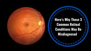 Here's Why These 3 Common Retinal Conditions May Be Misdiagnosed