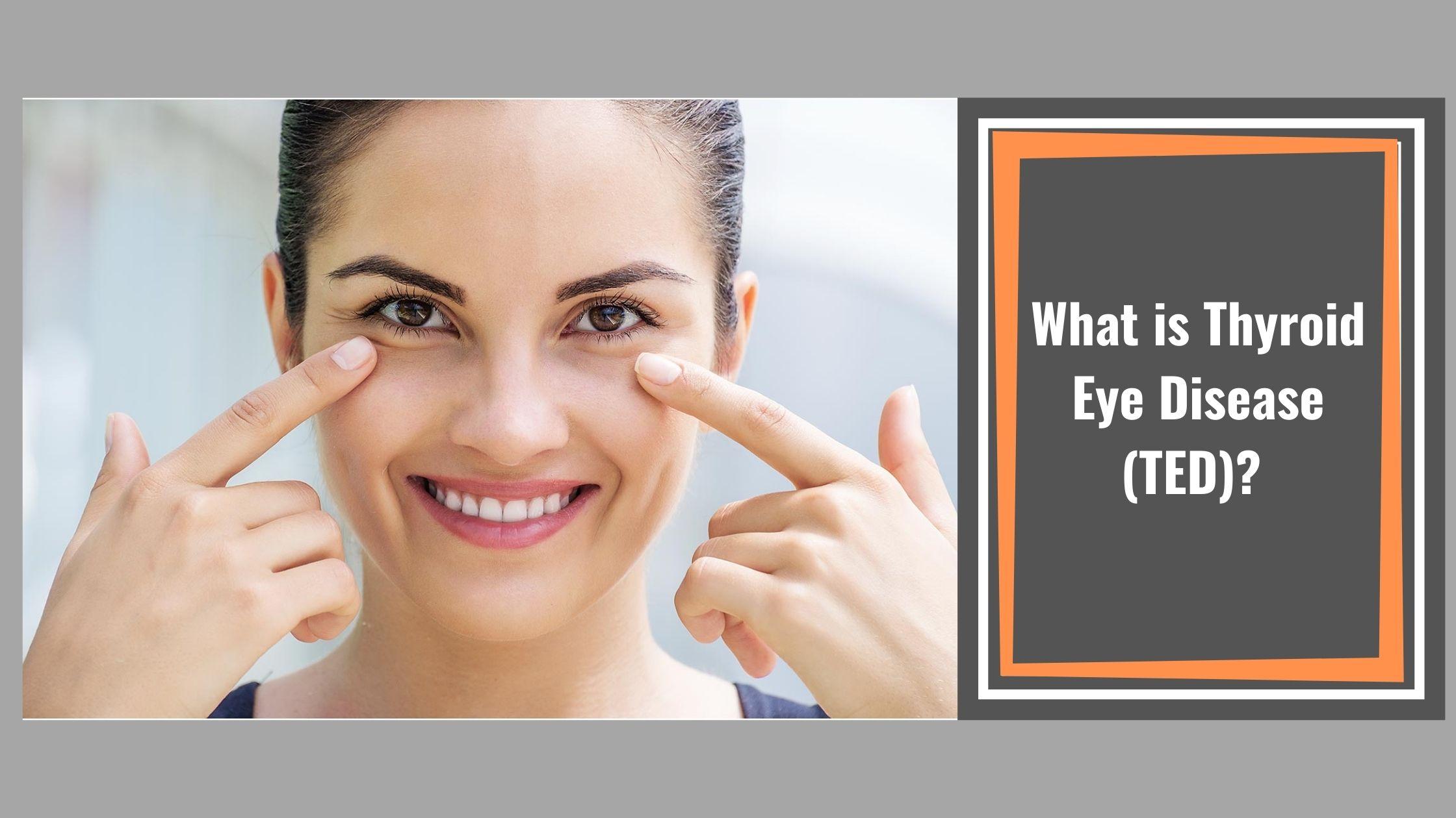 What is Thyroid Eye Disease (TED)?