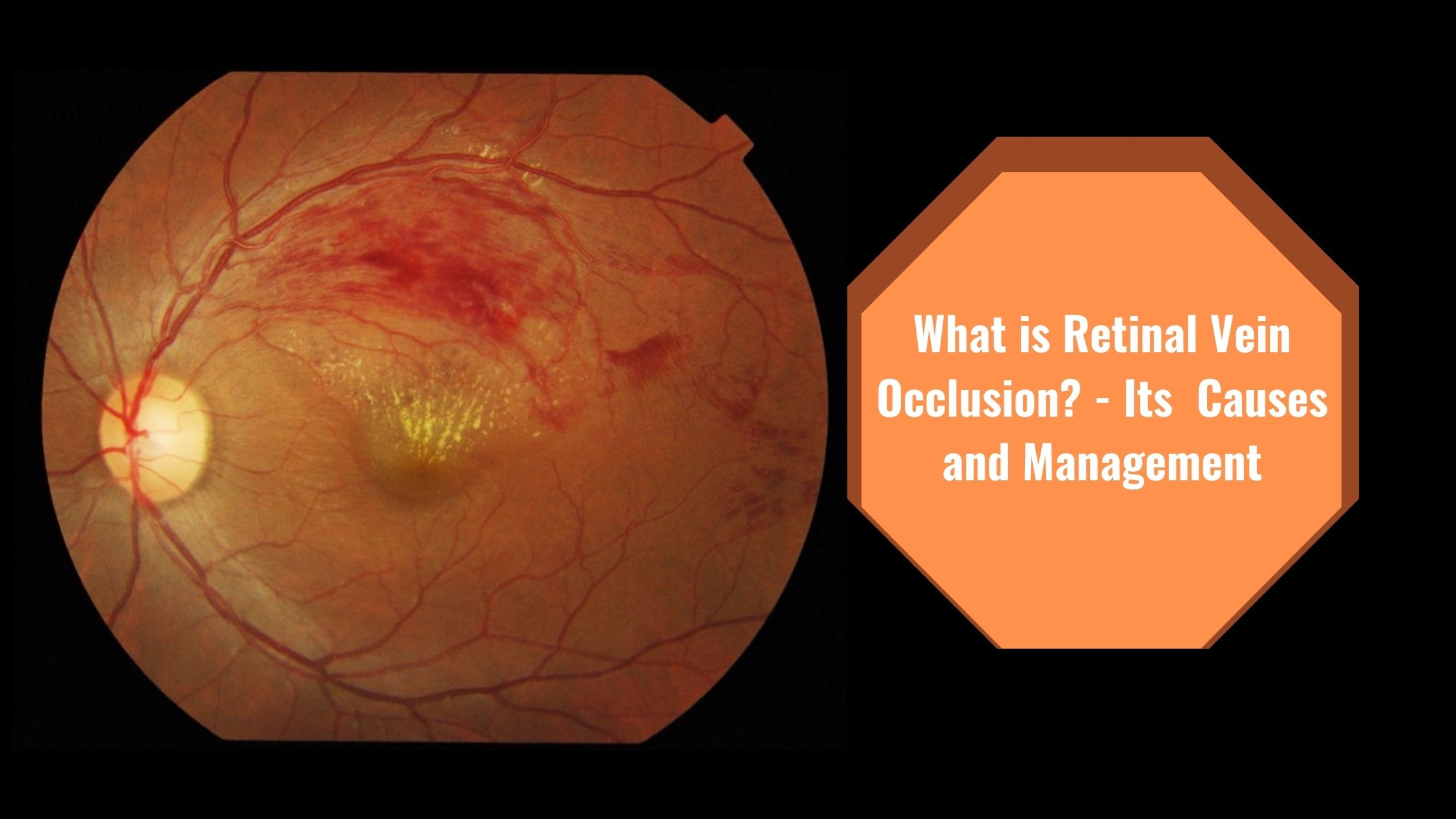What is Retinal Vein Occlusion? – Its  Causes and Management