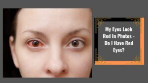 My Eyes Look Red In Photos – Do I Have Red Eyes?