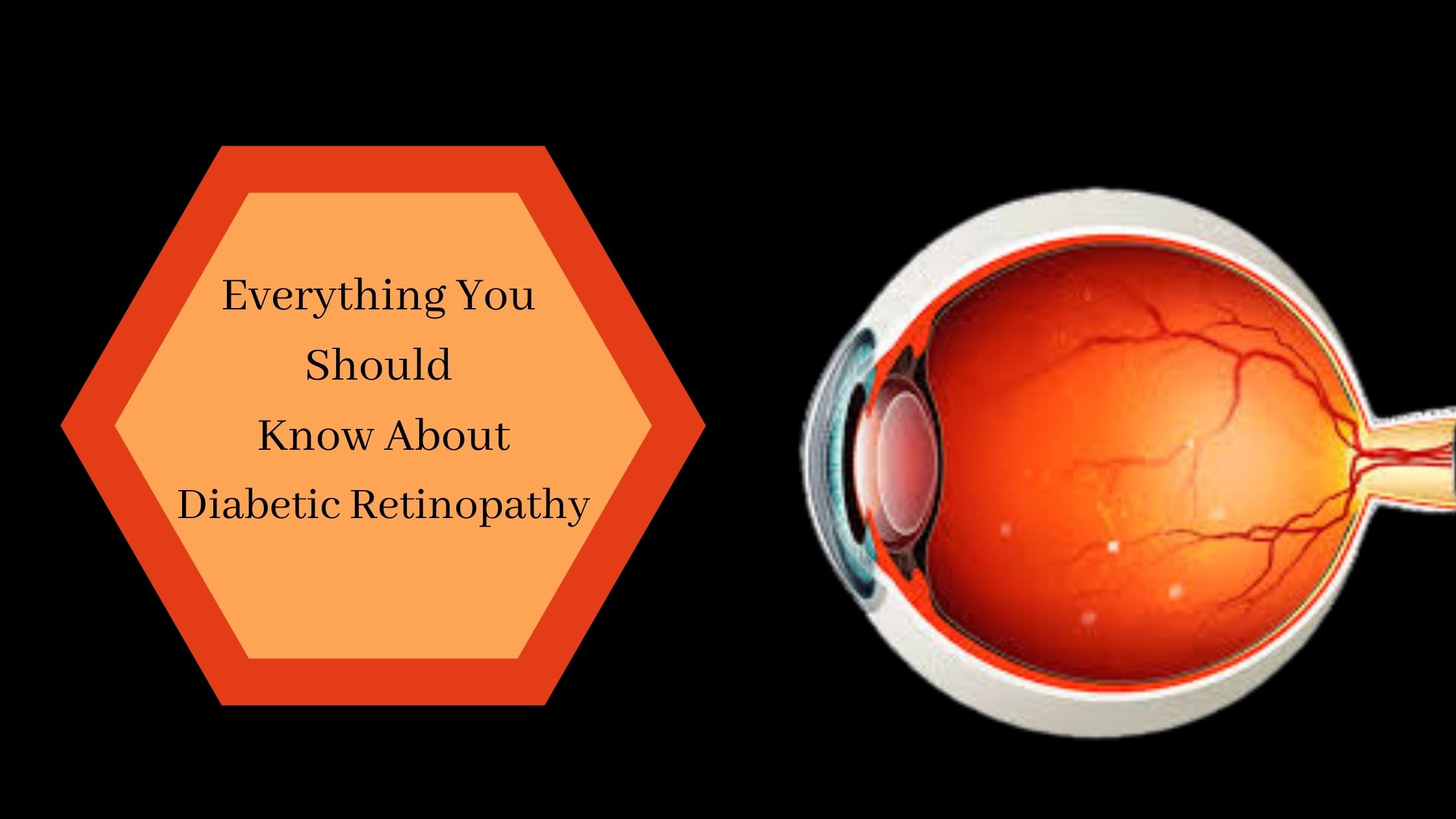 Everything You Should Know About Diabetic Retinopathy